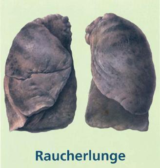 Pot Raucher Lungenkrebs